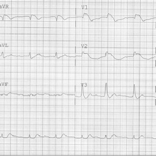 e ECG 6 h later revealed a bifascicular block pattern