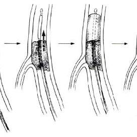(PDF) Semundjet e arterieve ne dhomat e urgjences