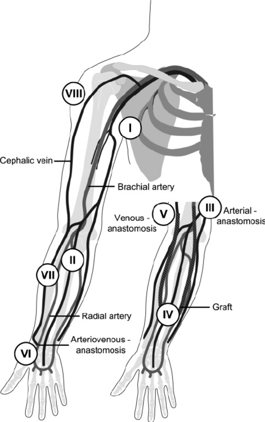hight resolution of schematic overview of both access types with the different vascular segments the larger drawing shows