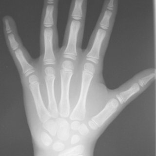 (PDF) Does Mirror Imaging a Radiograph Affect Reliability ...