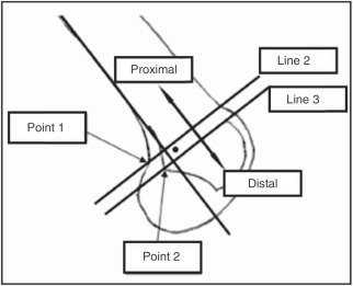 Femoral positioning using the method of Schöttle