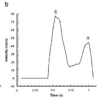Electrocardiogram for sinus rhythm (top) and atrial