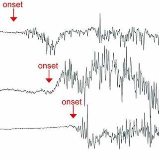 (PDF) Propofol and sevoflurane induce distinct burst