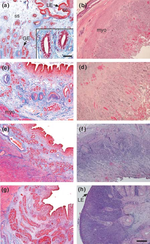 small resolution of histology of the intercaruncular and caruncular areas of the uterine wall on a b