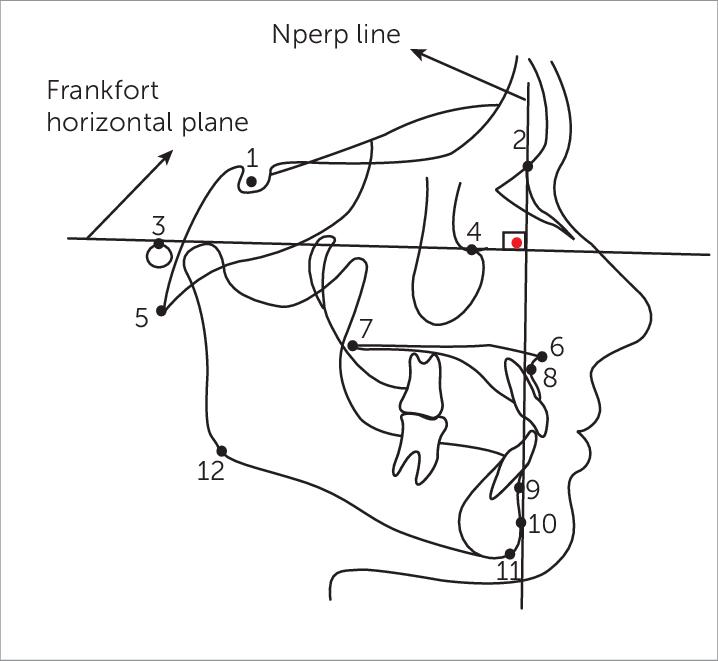 Pog Manual