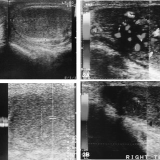 Longitudinal sonograms show testicular enlargement and in ...
