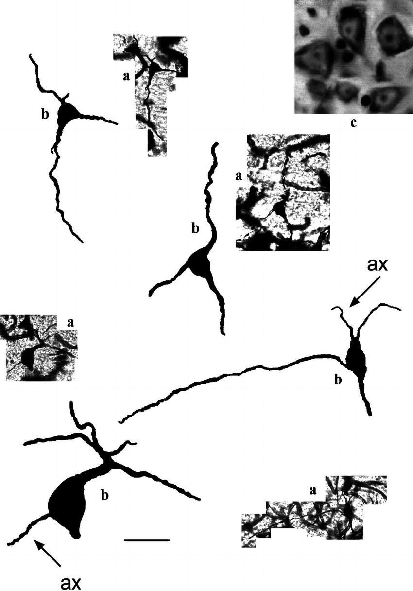 Multipolar neurons of POA of the mole. Scale bar 25 μm; a....