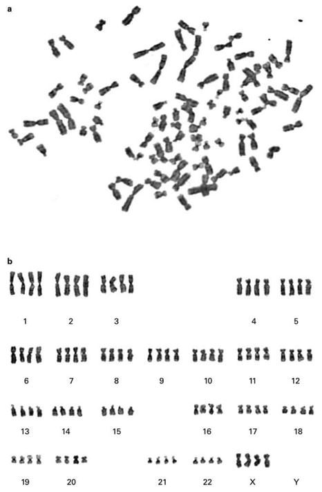 Tetraploid human female cell in metaphase. b Karyotyping
