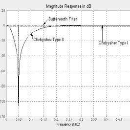 Basic Ecg Waveform Showing Pqrst Points