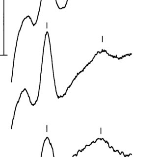 Growth (a) and specific rate of oxygen consumption (b) of