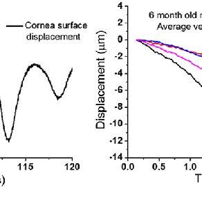 (PDF) In vivo estimation of elastic wave parameters using