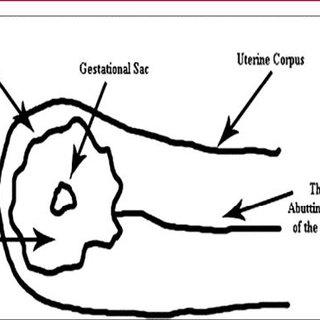 Diagram depicting the sonographic criteria for diagnosis