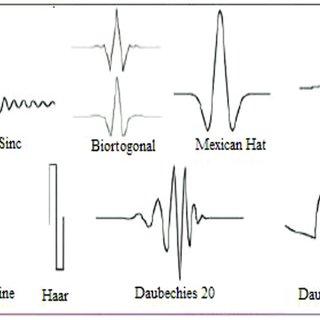 (PDF) Wavelet transform based voltage quality improvement