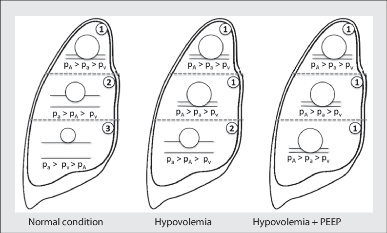 Evolution of West zones during hypovolemia and PEEP. Left