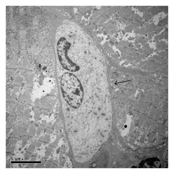 Transmission Electron Microscopy Analysis Of Muscle Stem