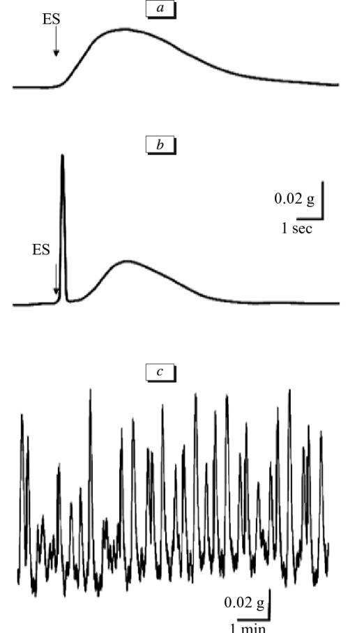 small resolution of contractile activity of the esophagus mechanomyographic record of download scientific diagram