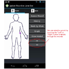 Wound Assessment Diagram Of Human Skeleton Bones The Update Screen We Can Select Wounds By Either Download Scientific