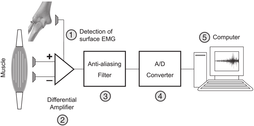 Simplified block diagram of surface electromyogram