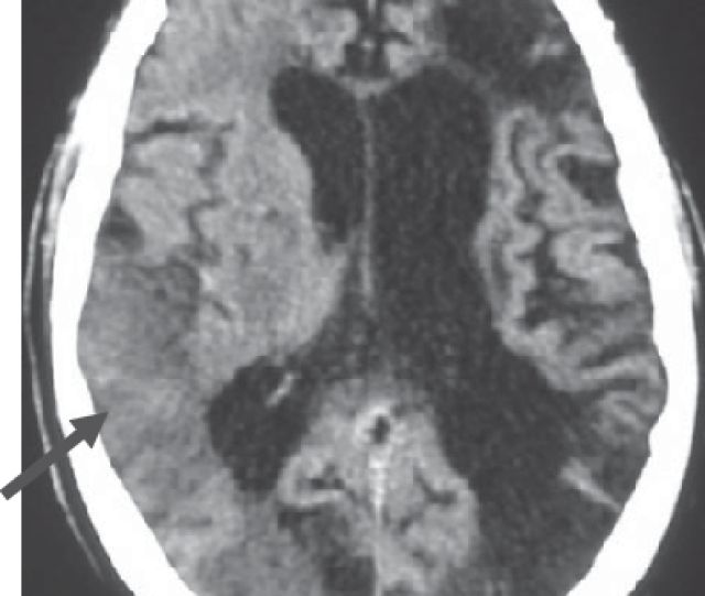 Ct Scan Of Multi Infarct Dementia Showing The Presence Of Three Large Download Scientific Diagram