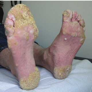 Diagram Of Crohn Disease Worsening Of Plantar Warts In A 29 Year Old Man During