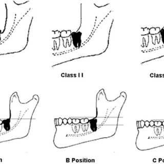 Schematic drawing showing the third molar positions
