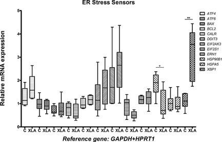 Expression of ER stress sensor genes in monocytes from XLA