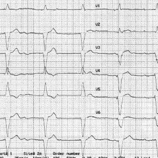 (PDF) Atrial fibrillation at implantable cardioverter