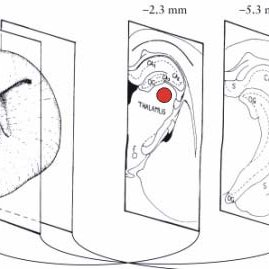 2: Dentate gyrus recording. Illustration of the position