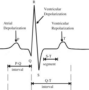 5: ECG signal, its fiducial points and the corresponding