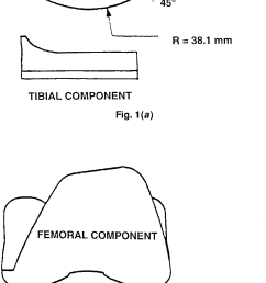 diagram of femoral and tibial components of a typical condylartype total knee prosthesis a [ 817 x 1609 Pixel ]