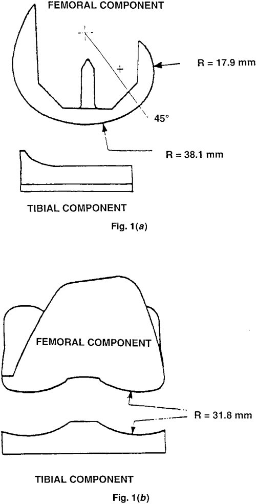 small resolution of diagram of femoral and tibial components of a typical condylartype total knee prosthesis a