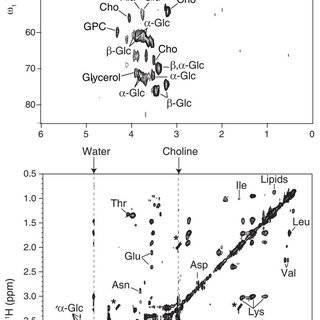 (PDF) Slow-spinning low-sideband HR-MAS NMR spectroscopy