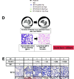 pulmonary tissue remodeling after irradiation and connective tissue growth factor blockade a sirius red [ 580 x 1819 Pixel ]