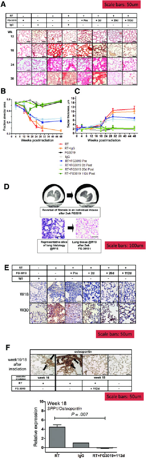 hight resolution of pulmonary tissue remodeling after irradiation and connective tissue growth factor blockade a sirius red