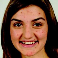 Acne Face Diagram Brain Tumor Representative Facial Image Of A Teen With Visible Download