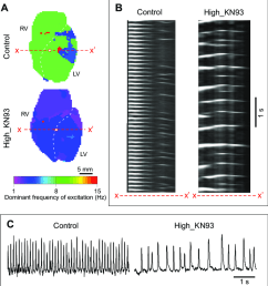 camkii block by kn93 is associated with slow and aperiodic dynamics of ischemic ventricular fibrillation  [ 850 x 929 Pixel ]