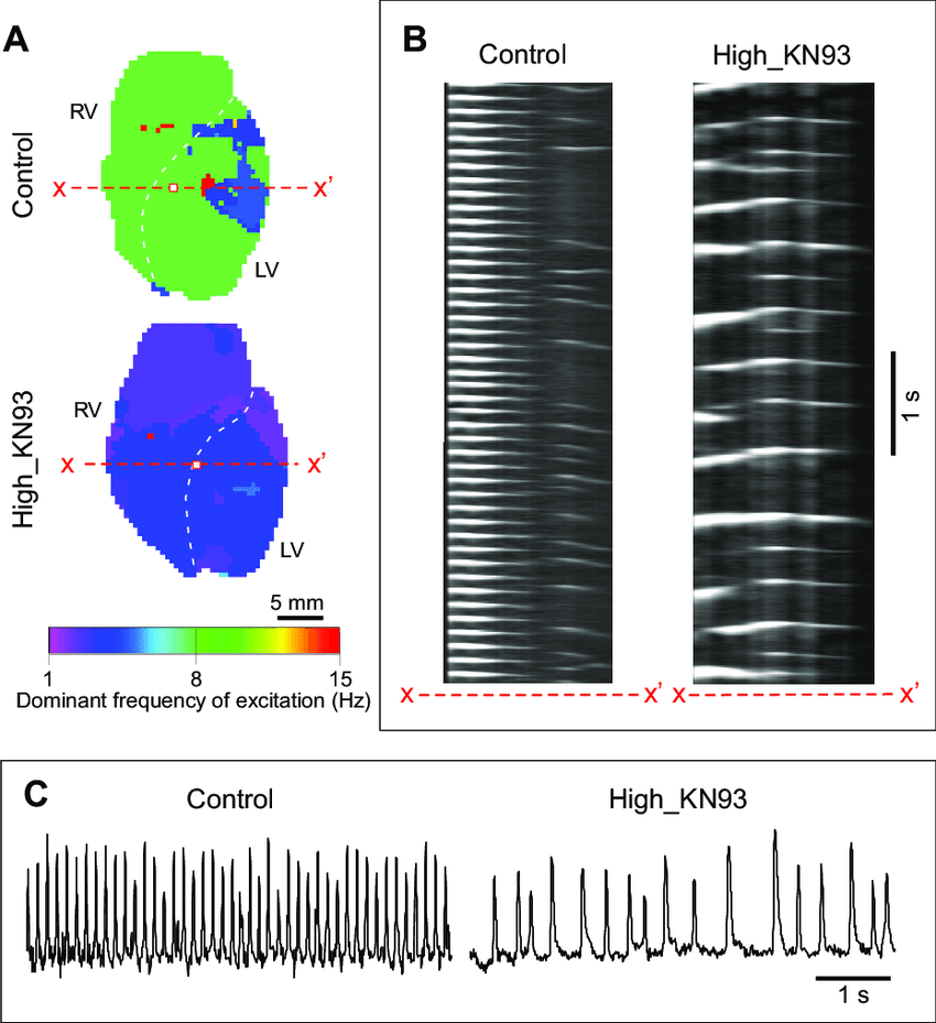 hight resolution of camkii block by kn93 is associated with slow and aperiodic dynamics of ischemic ventricular fibrillation