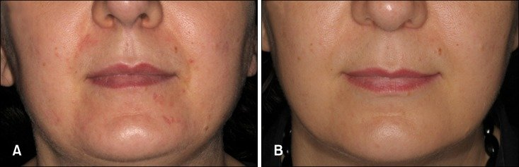 Clinical improvement of perioral dermatitis with a ...