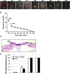 macroscopic and microscopic evaluation of the skin wound healing process in foxn1 egfp and [ 850 x 999 Pixel ]