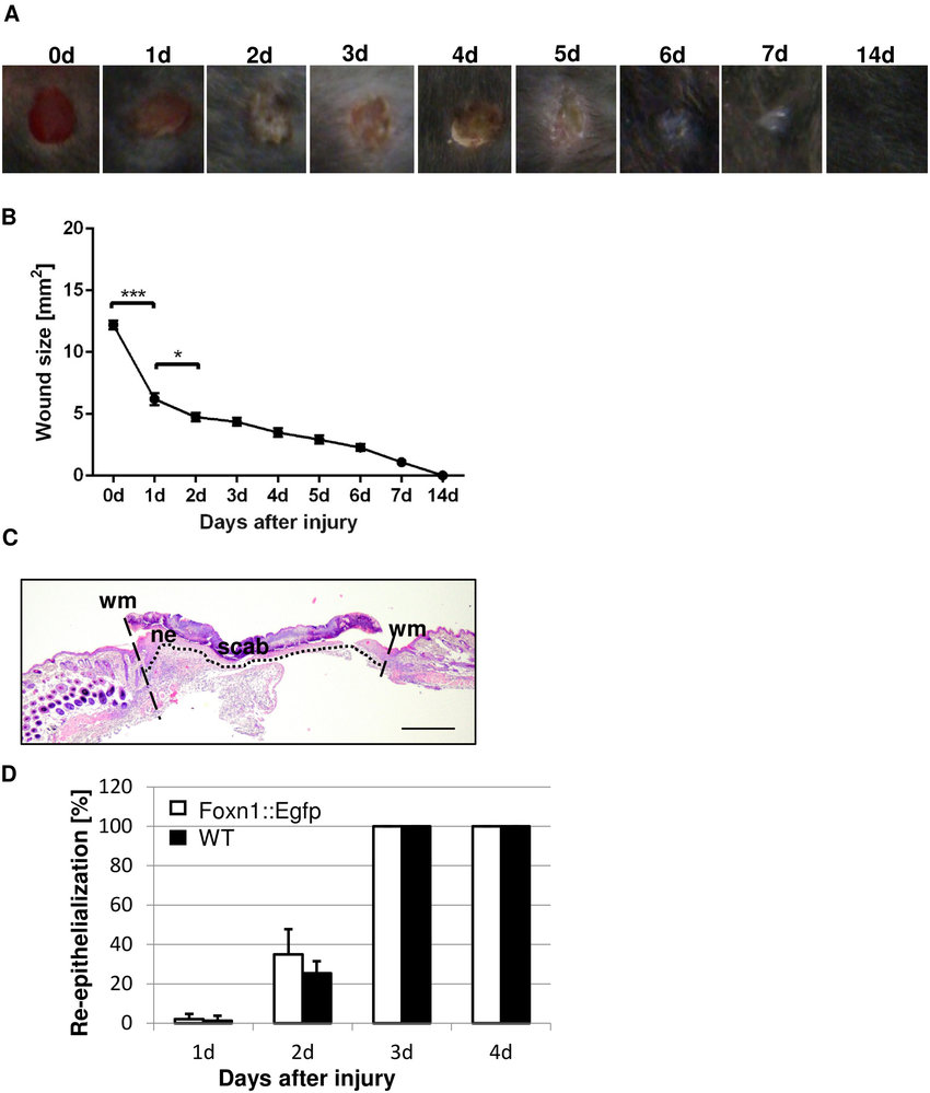 hight resolution of macroscopic and microscopic evaluation of the skin wound healing process in foxn1 egfp and