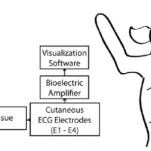 (PDF) Real-time gastric motility monitoring using