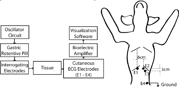 Block-diagram of the pill-based setup (left) and the