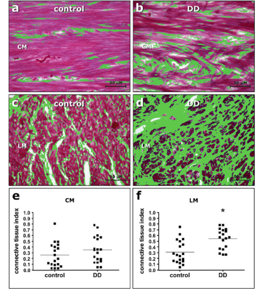 small resolution of determination of connective tissue index representative images of azanstained sections of the circular cm