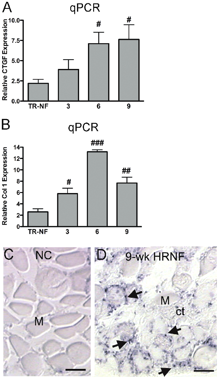 hight resolution of examination of expression levels of connective tissue growth factor ctgf and collagen 1