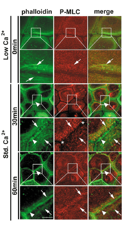 small resolution of following cell cell junction formation phosphorylated myosin light chain p mlc