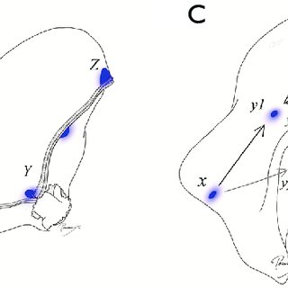 Conventional segmentectomy and VAL-MAP-assisted complex