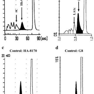 (PDF) Cases with Hb Toranomon show abnormal HbA1c levels