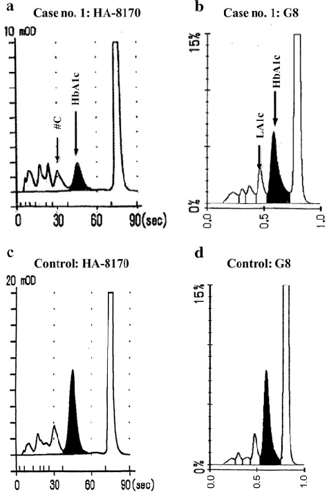 HPLC charts from the new Arkray (a, c) and the new Tosoh