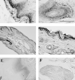 photomicrographs of sections of guinea pig tongue e f and skin from download scientific diagram [ 850 x 1021 Pixel ]