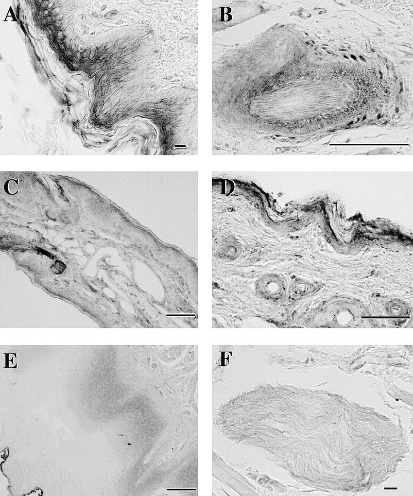 hight resolution of photomicrographs of sections of guinea pig tongue e f and skin from download scientific diagram
